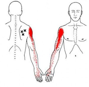 Trigger Points and Shoulder Pain - Infraspinatous TrPs