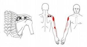 heiler Trigger Points and Shoulder Pain
